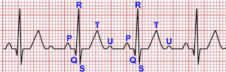 papel electrocardiográfico