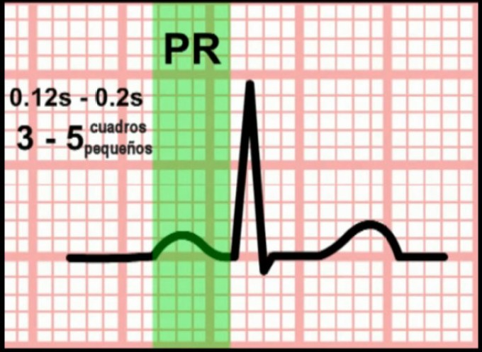 Intervalo PR ECG