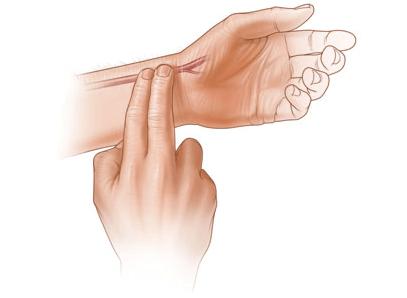 Gasometría arterial, ZONA A PUNCIONAR