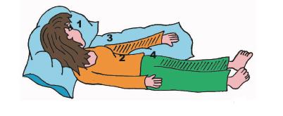 Prevención de la aducción del hombro acv evc