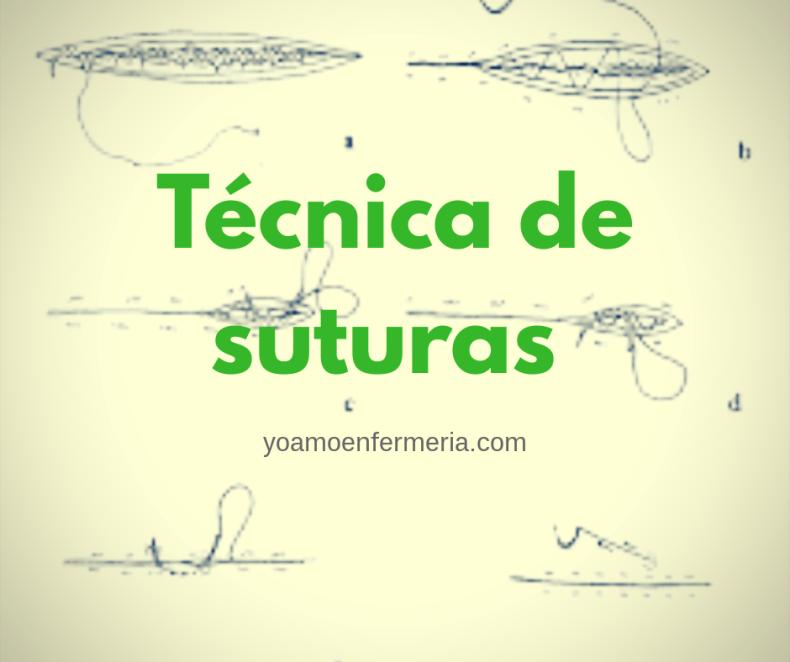 Técnicas de suturas.