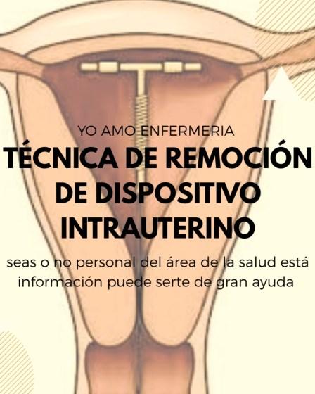 DISPOSITIVO INTRAUTERINO TÉCNICA DE RETIRO