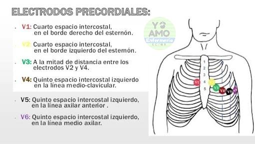 Derivaciones periféricas electrocardiograma