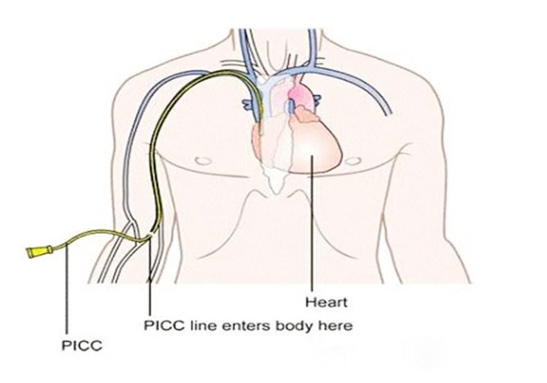 Catéter central de inserción periférica (PICC)