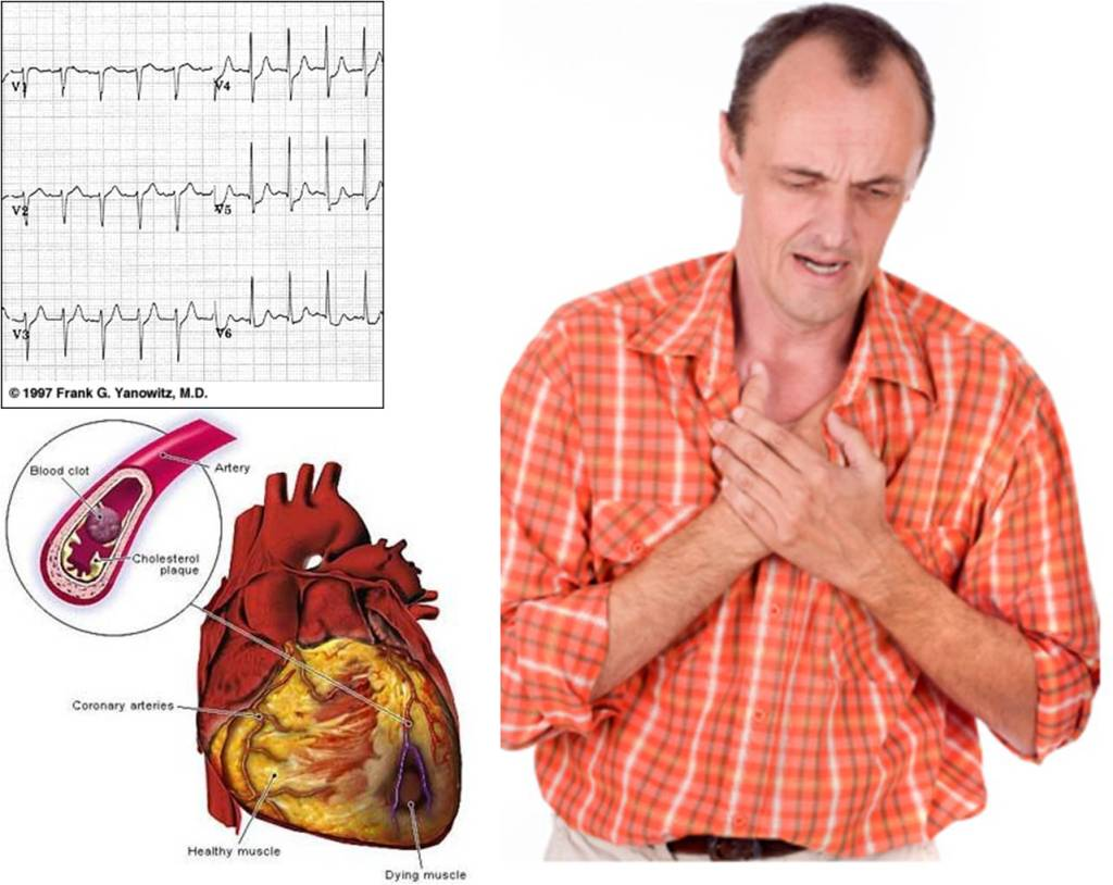 Infarto agudo de miocardio cuidados de enfermería