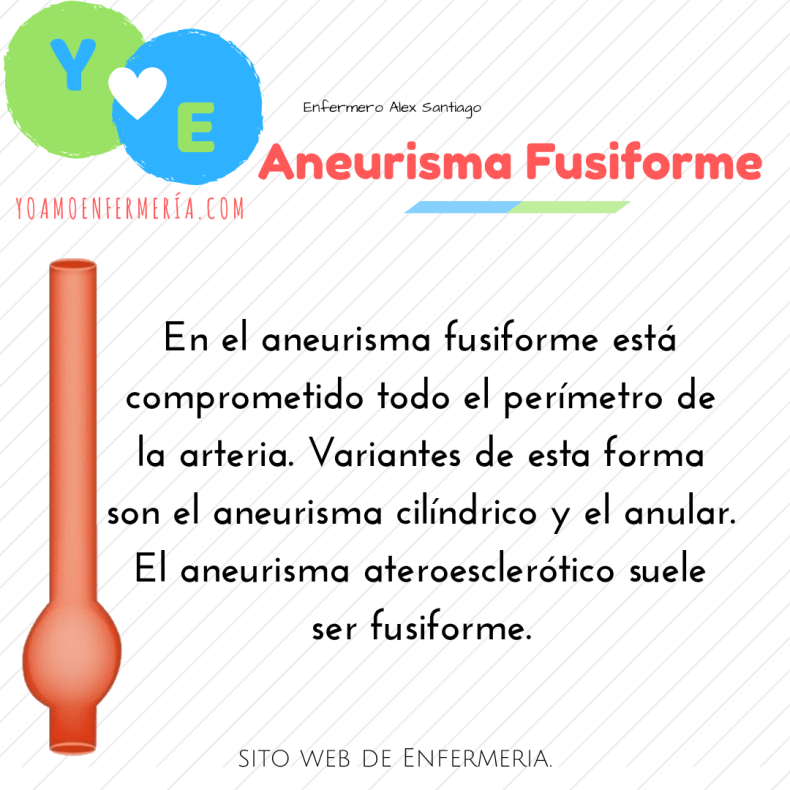 ANEURISMA FULSIFORME