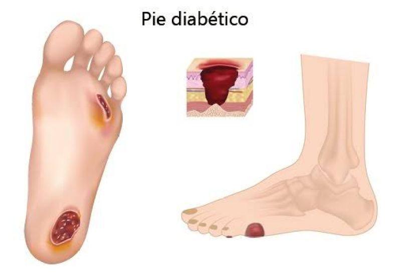 Pie Diabético planes de cuidados de Enfermería