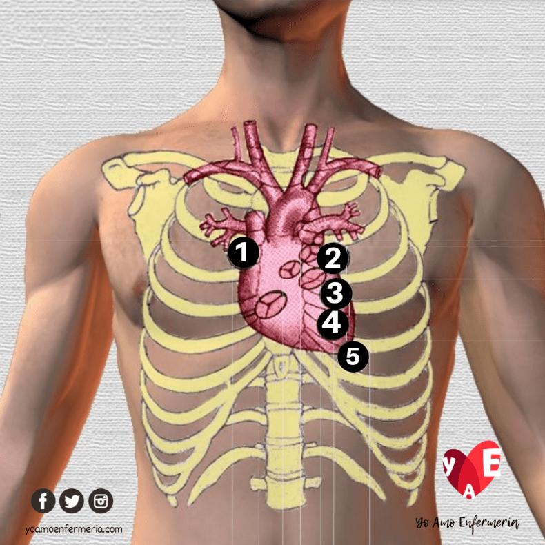 5 focos de auscultación cardíaca tradicionales
