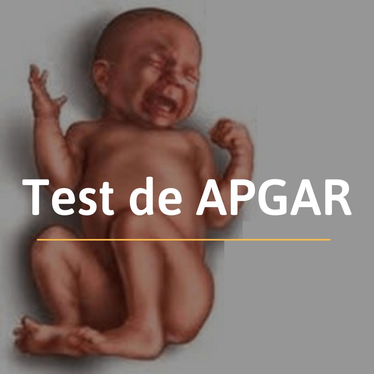 El test de APGAR es una primera valoración del recien nacido y tiene como objetivo detectar posibles problemas de manera rápida y poco molesta para el bebé.