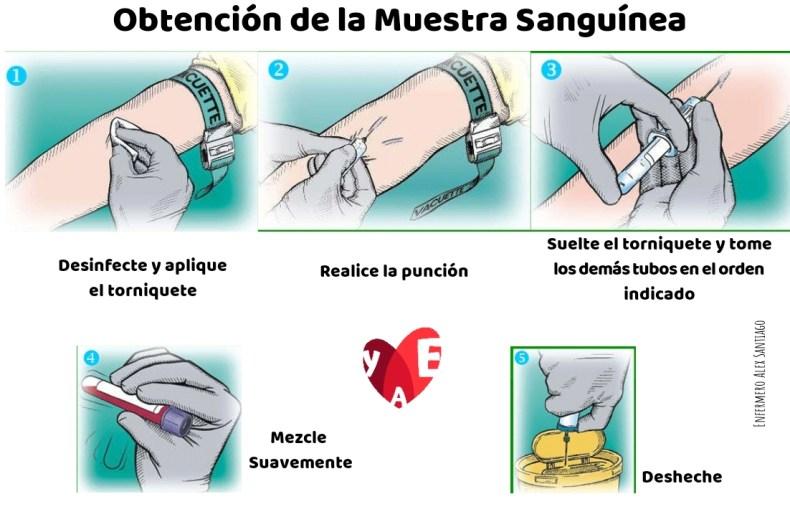OBTENCIÓN DE MUESTRA SANGUINEAS CON TUBOS DE VACÍO