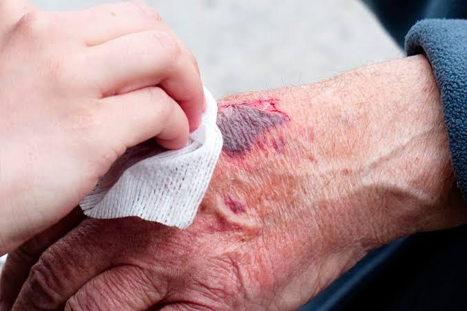 Evita aplicar demasiada fricción al preparar la piel.