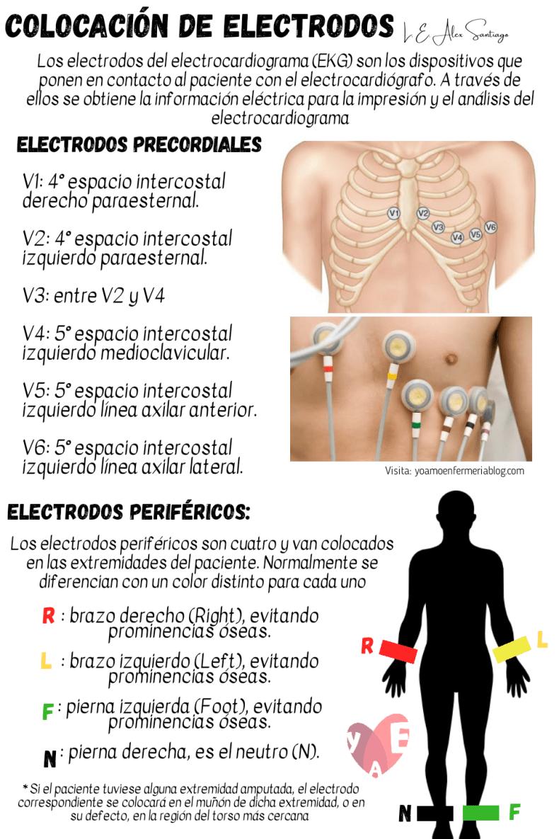 Colocación de los electrodos EKG
