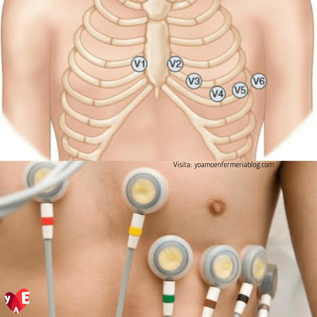derivaciones precordiales electrocardiograma