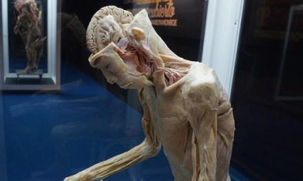 Experto en plastinación está de visita en Bodies, cuerpos humanos