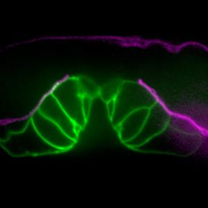 Two kissing walrus? Two caterpillars? Nope! C. elegans vulval development!