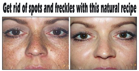 How To Get Rid Of Dark Freckles Naturally