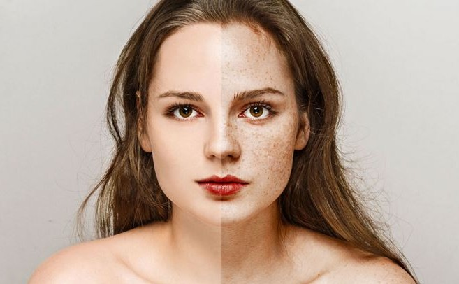 How To Get Rid Of Freckles by home rememdies