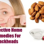 Simple Home Remedies How To Remove Blackheads Naturally