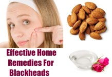 how to remove blackheads instantly