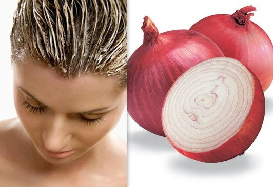 Onion And Lemon Juice Pack To Get Rid Of White Hairs Naturally
