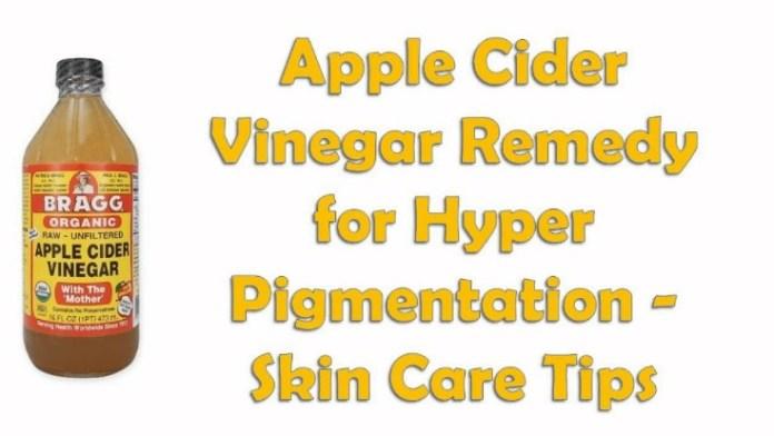 apple cider vinegarTo Get Rid Of Pigmentation