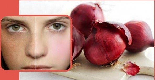 Onion To Get Rid Of Pigmentation