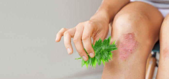 benefits of neem oil lamp