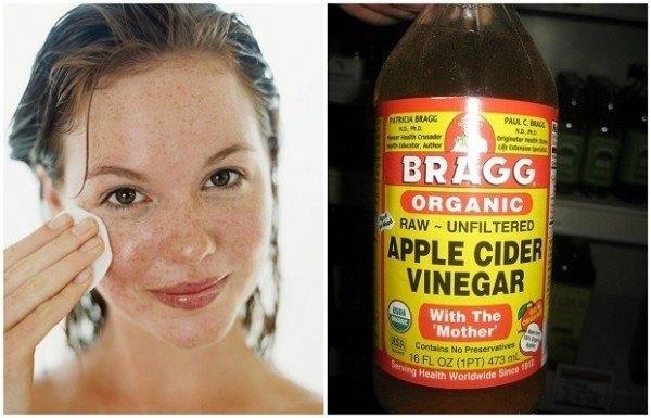 apple cider vinegar for skin problem