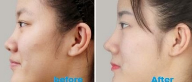 how to make smaller nose