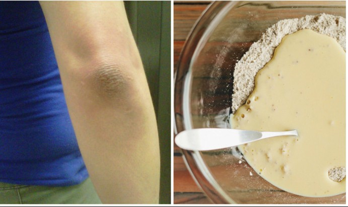yogurt To Remove Dry Skin From elbow