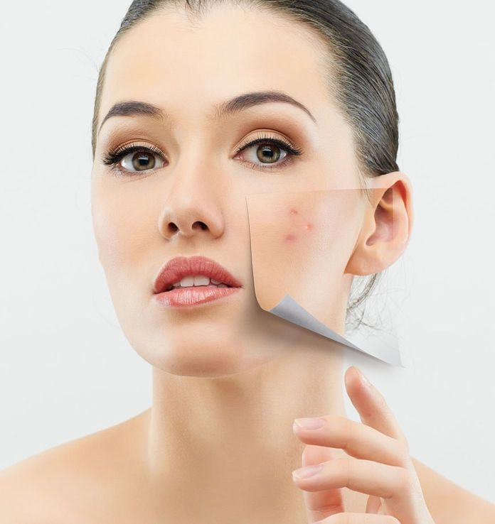 acne-treatment-at-home-best-natural-acne-treatment-in-usa-acne-treatment