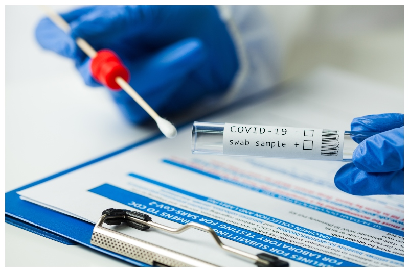 RT-PCR Test of Covid-19