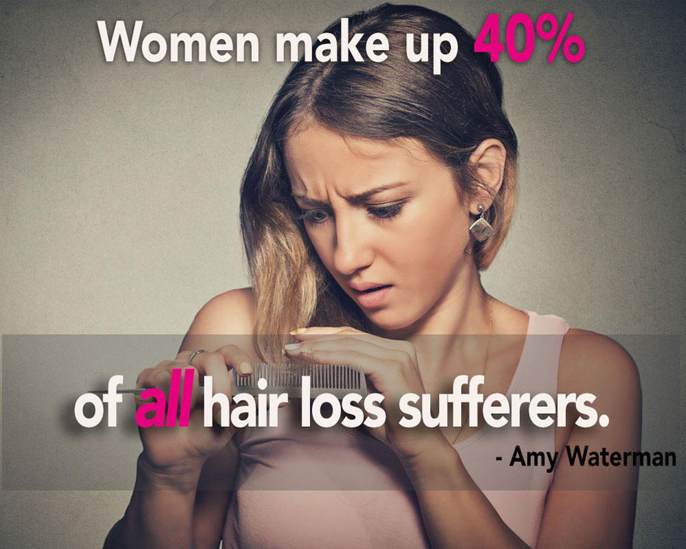Why Women Lose So Much Hair