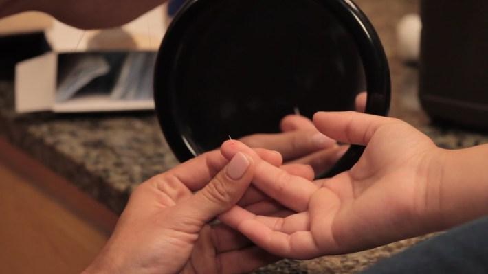 how to remove fiberglass off of skin