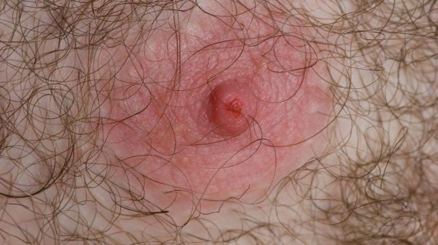 CDC reports new strain of herpes that causes extra nipples to grow on your body