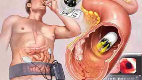 Colonoscopy Prep
