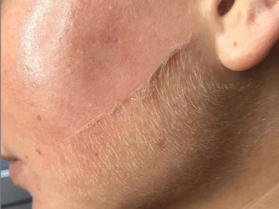 6 reasons you should try dermaplaning