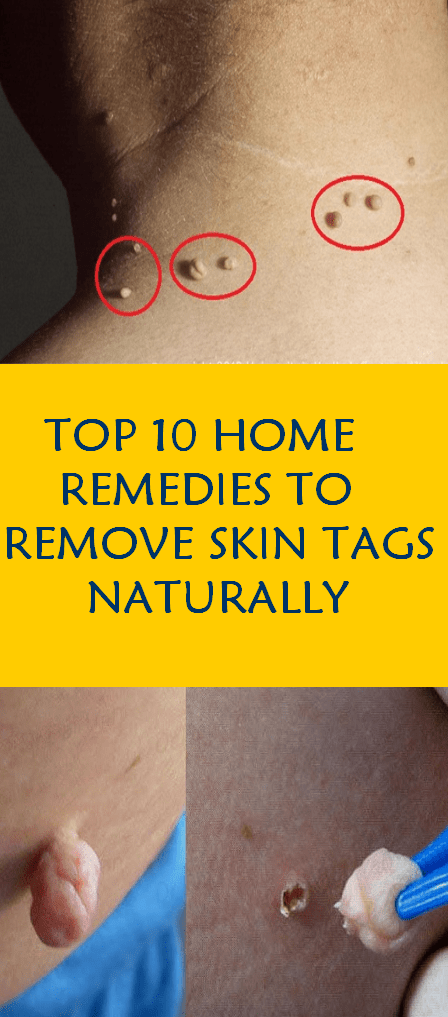 TOP 10 HOME REMEDIES TO REMOVE SKIN TAGS NATURALLY
