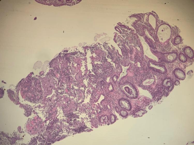 colon-biopsy