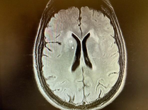 lesões cns e meningite estão presentes
