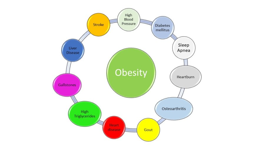 The Orbit of Obesity: High blood pressure is seen with obesity