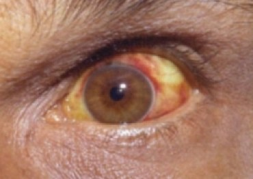Leptospirosis can present with conjunctival suffusions and scleral icterus.