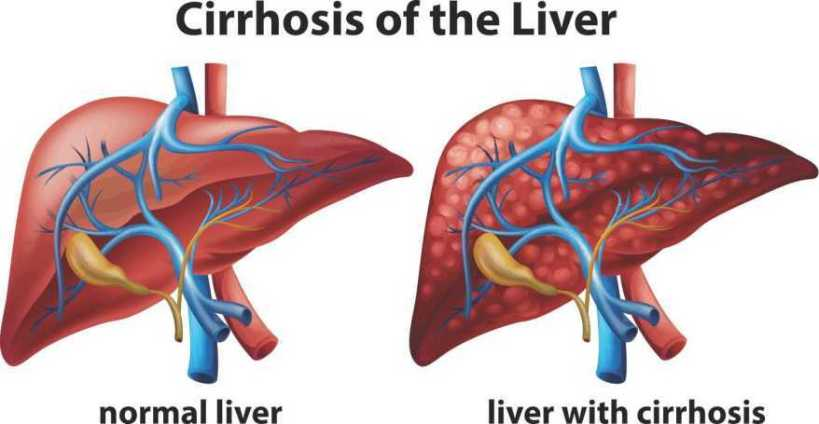 how-alcohol-damages-your-liver-06