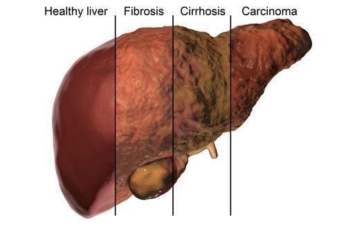 how-liver-cancer-develops-06