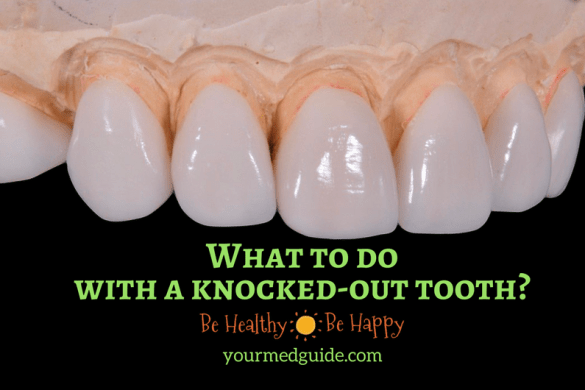 What to do with a knocked-out tooth. #dentist #knockedouttooth