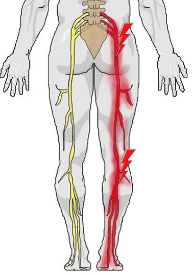 Sciatica-leg-pain-picture