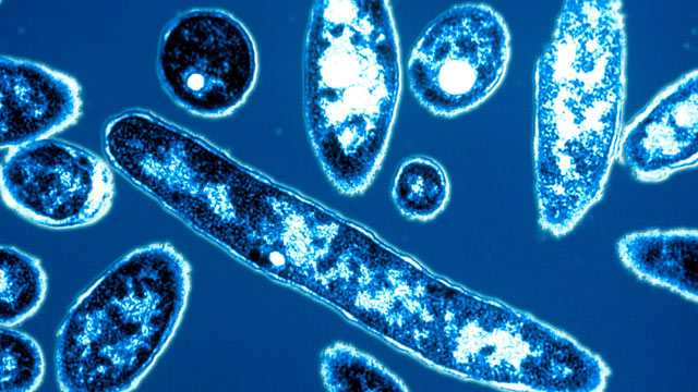 Legionnaire Disease