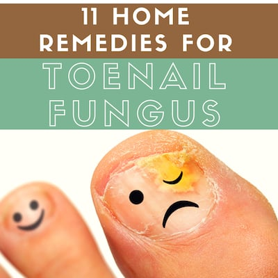 11 Home Remedies For Toenail Fungus That Actually Work You