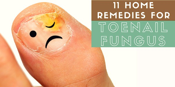 11 Home Remedies For Toenail Fungus That Actually Work | You
