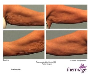 Thermage 20
